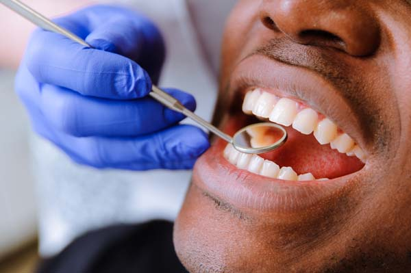Are Dental Veneers A Popular Cosmetic Procedure?
